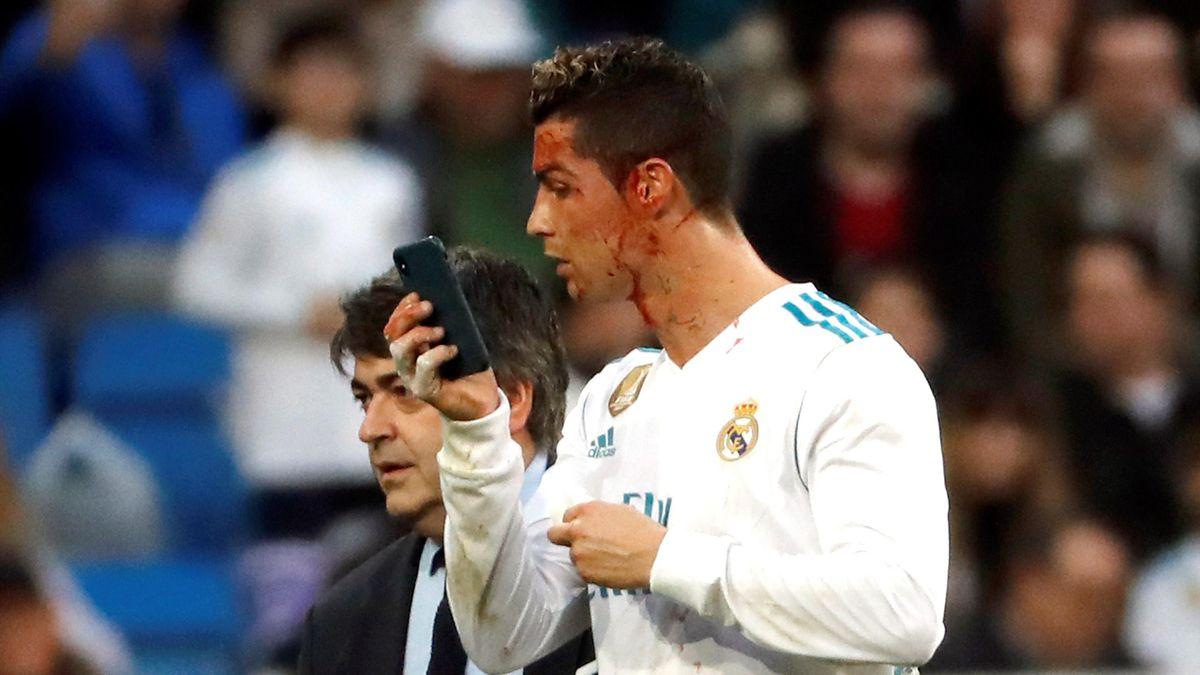 Cristiano Ronaldo se mira su rostro ensangrentado