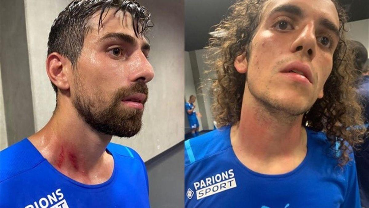 Ligue 1   Las heridas de los jugadores agredidos del Marsella: marcas en el cuello, sangre... - Eurosport