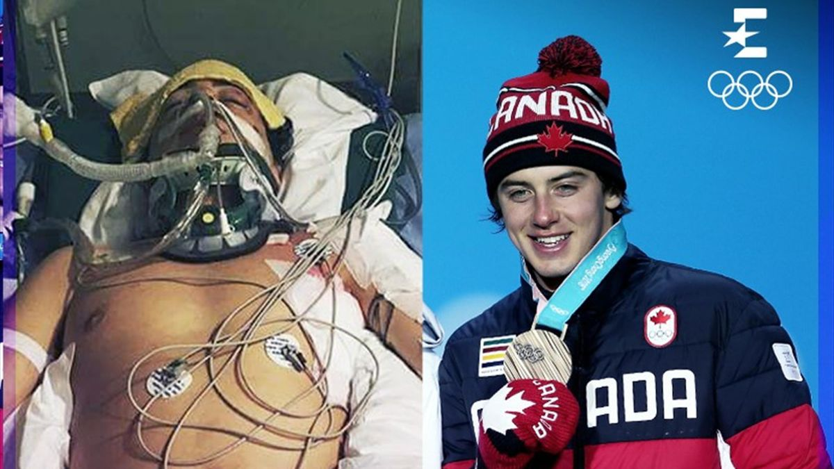 "Mark ""The Unbroken"" McMorris PyeongChang 2018"