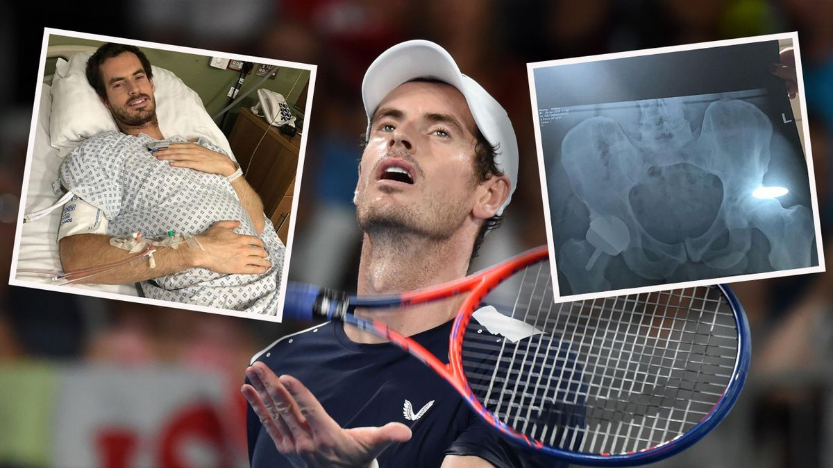 Andy Murray posted a picture of himself on Instagram from his hospital bed, plus an X-ray of his new hip