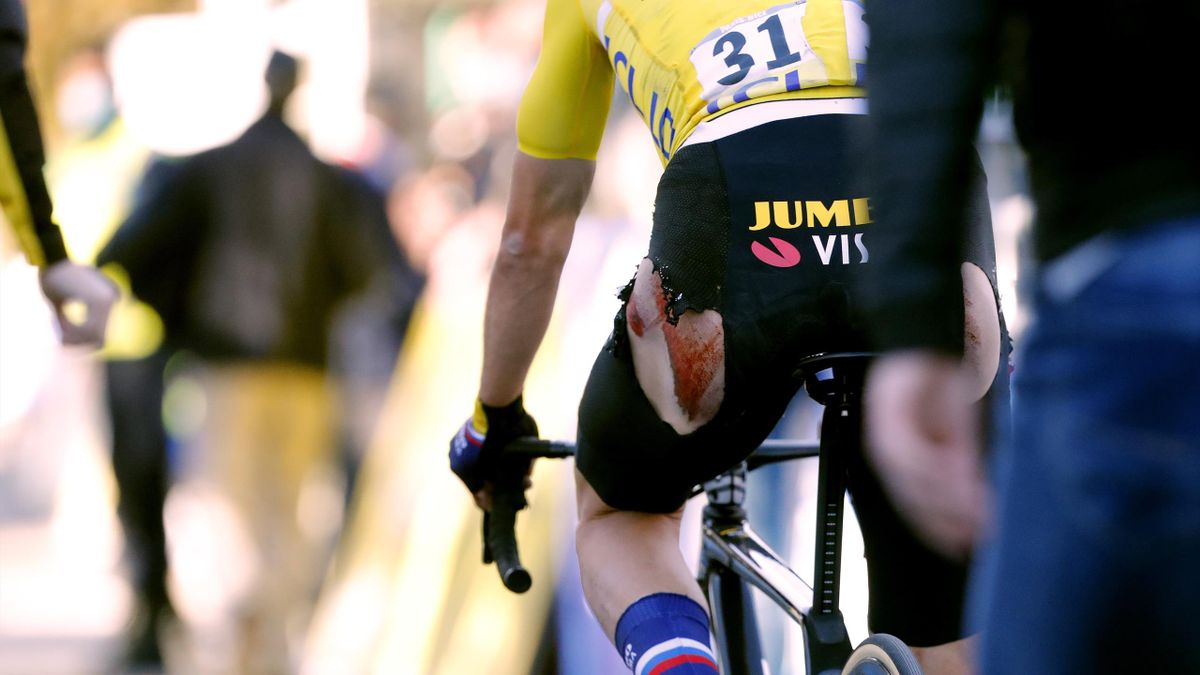A bloodied Primoz Roglic after losing Paris-Nice on the final day