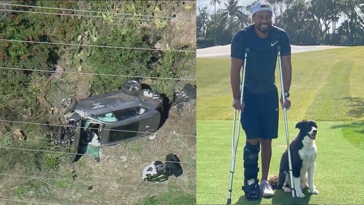 """Tiger Woods in stampelle, ma con il sorriso: """"Sto meglio"""""""
