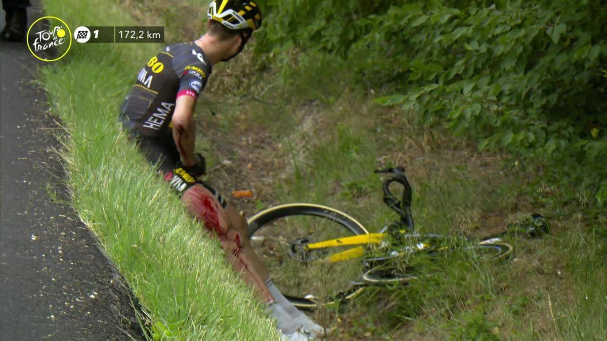 Stage 11 Crash sees bloodied Tony Martin abandon Tour de France